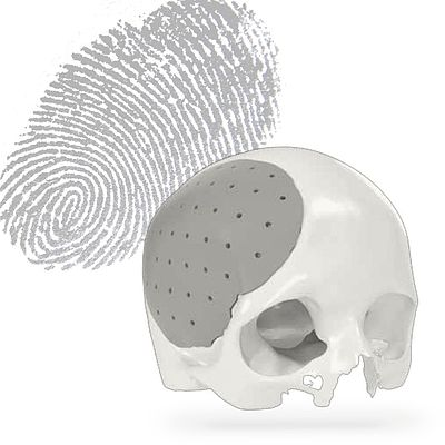 """#Spotlight in #CMF #2⠀<br /> ⠀<br /> Cranial bone structures are as individual as our fingerprint. Therefore, there is no """"one size fits all"""". As your clinical partner, we offer a variety of cranial implant options to help find the """"perfect fit"""" for your patient and get the best results possible. All of our cranio options are available with the use of IPS® Planning to give your patient the best 3-D precision fit implant optimized to your patient's individual needs.⠀<br /> ⠀<br /> Find out more: https://bit.ly/3sRXaiO⠀<br /> ⠀<br /> Please note, that not all products are available in all markets. Please contact your local KLS Martin representative for market-specific information. ⠀⠀<br /> ⠀<br /> #KLSMartinGroup #KLSMartin #SurgicalInnovationisourPassion #NeuroSurgery #IPS #IPSPlanning #Cranio #Cranial"""