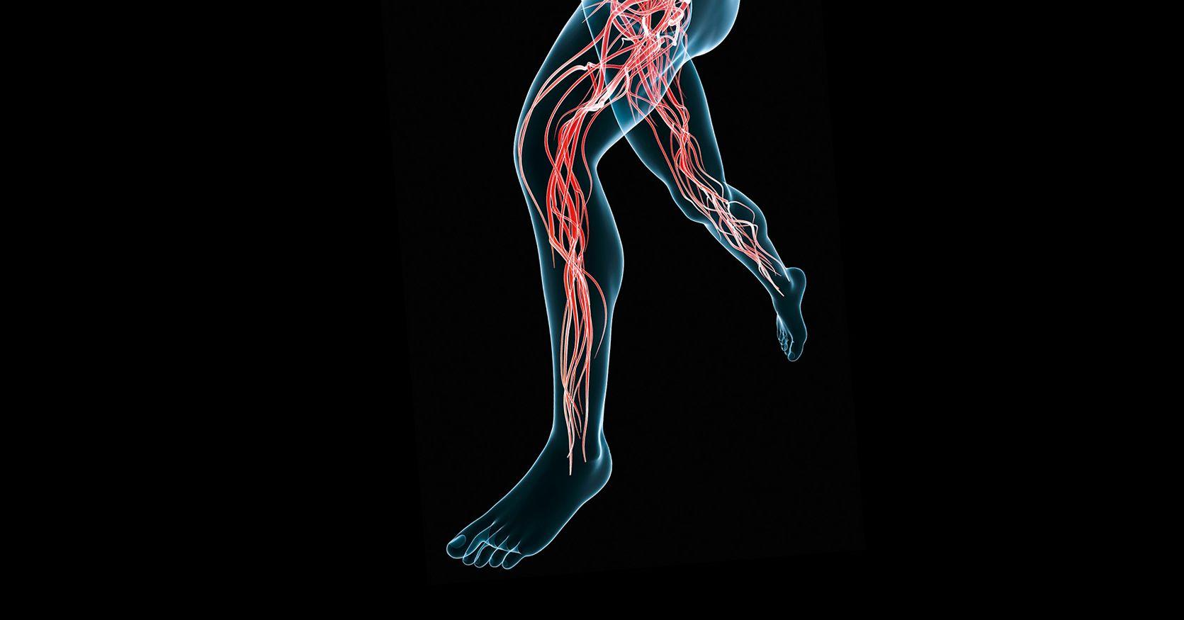 phlebotonics a lábak varikózisában)