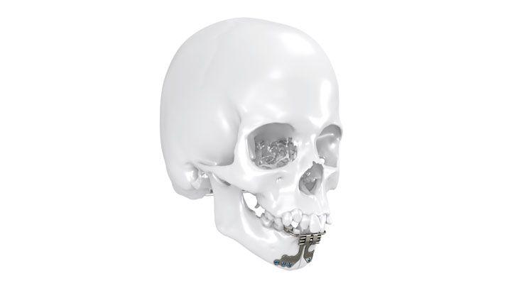 Transversal plane of the maxilla and mandible