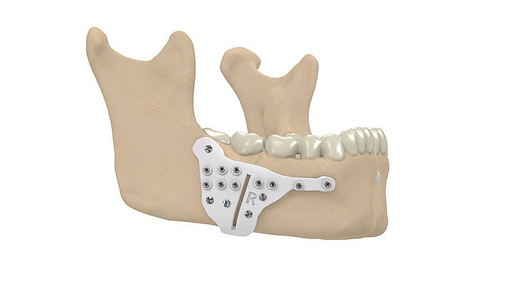 Insertion of the guides and performing the osteotomy