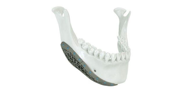 Onlay de mandíbula de titanio AM