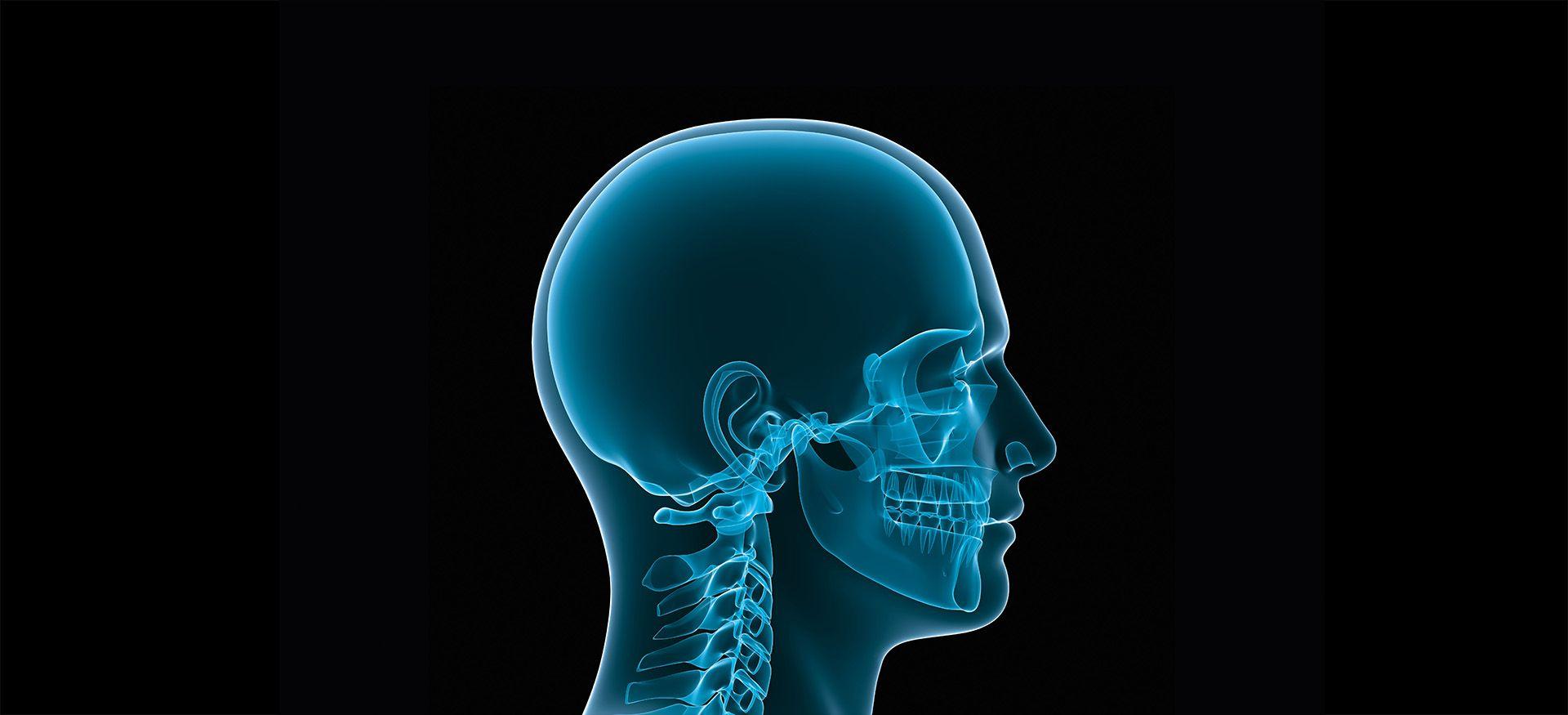 Cirugía cráneo-maxilofacial
