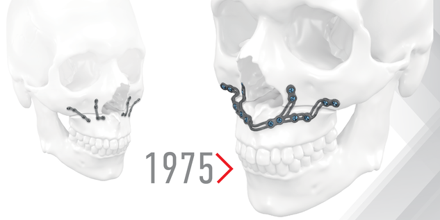 MKG-Implantate