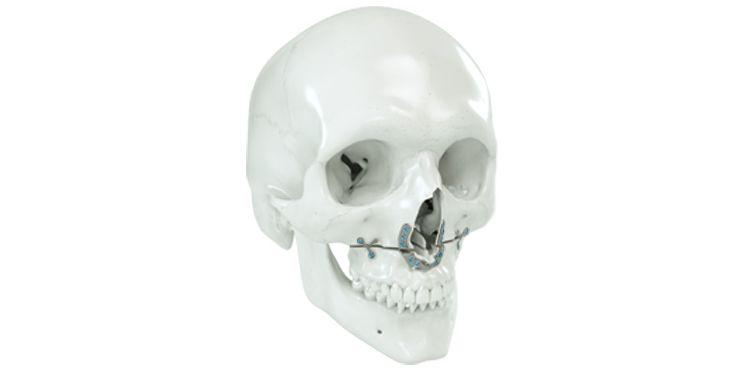 IPS Implants® MI Orthognathics