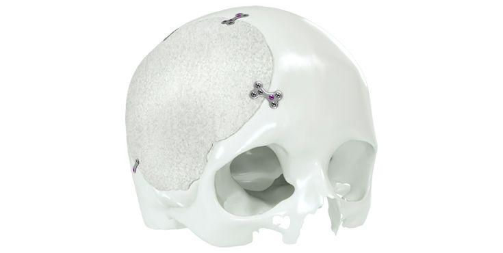 IPS Implants® Cranium