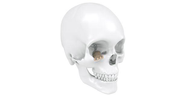 Implante orbitario de PEEK