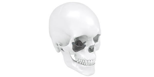 Implante orbitario de titanio AM, incluida malla para hueso cigomático