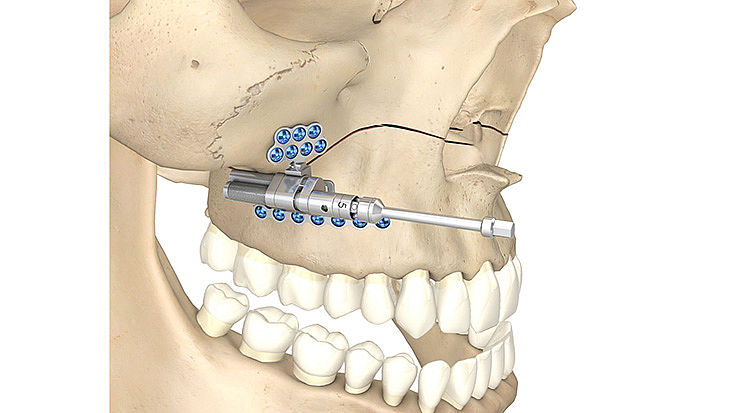 CMF surgery - Maxillary Telescoping Distractor