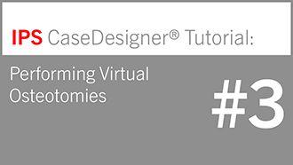 IPS CaseDesigner® – Tutorial 3