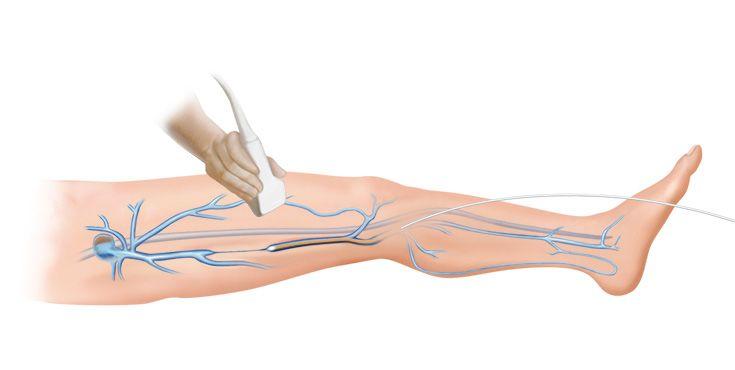 Sistemas láser quirúrgicos diomax® Venex 360° AEVL