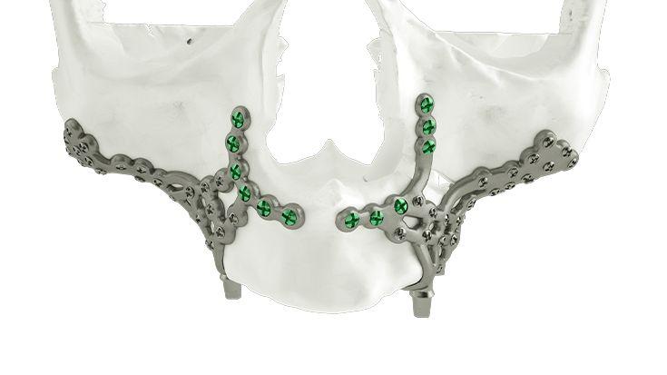 Treatment of an atrophic maxilla
