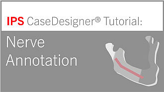 Workflow optional – Nerve Annotation | IPS CaseDesigner® Tutorial