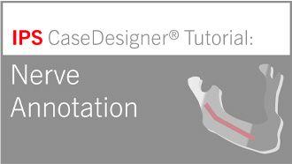 Workflow optional – Nerve Annotation   IPS CaseDesigner® Tutorial