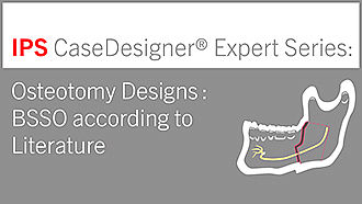 Osteotomy Designs | BSSO according to Literature | IPS CaseDesigner® Expert Series