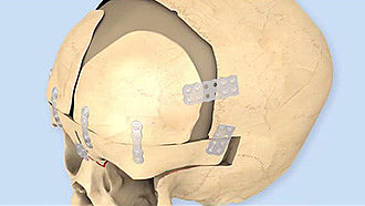 SonicWeld Rx® surgical technique – Craniosynostosis
