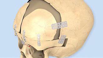 Técnica quirúrgica SonicWeld® – Craneosinostosis