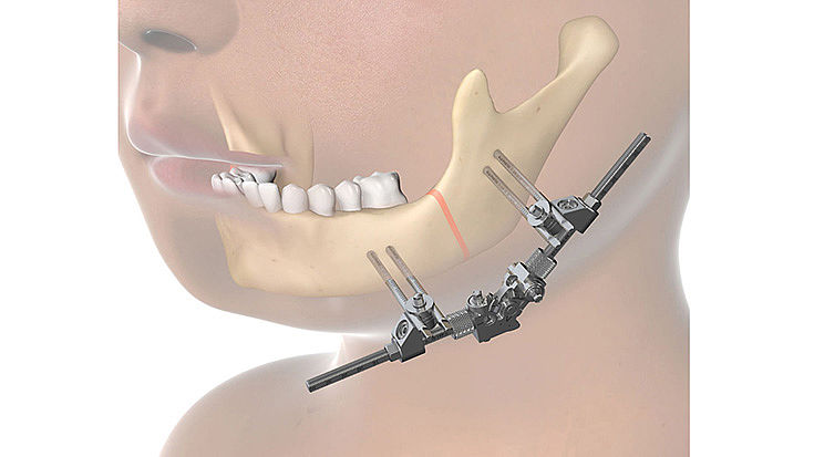CMF surgery - 3D Xternal Distractor Multidirectional