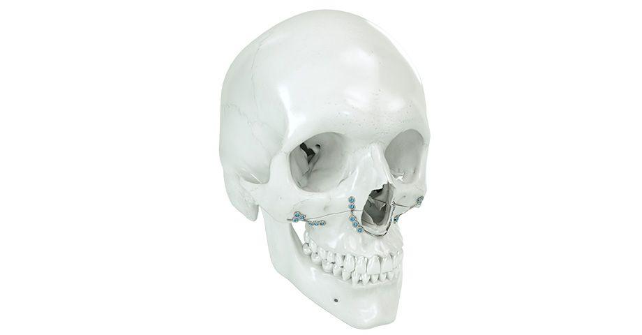 Orthognatie
