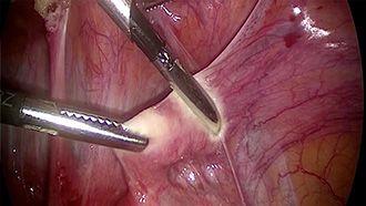 Electrosurgery - marSeal - Anwendung in der Gynäkologie Teil 1