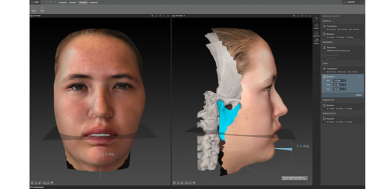 Surgery Model