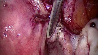 Electrosurgery - marSeal - Anwendung in der Gynäkologie Teil 2