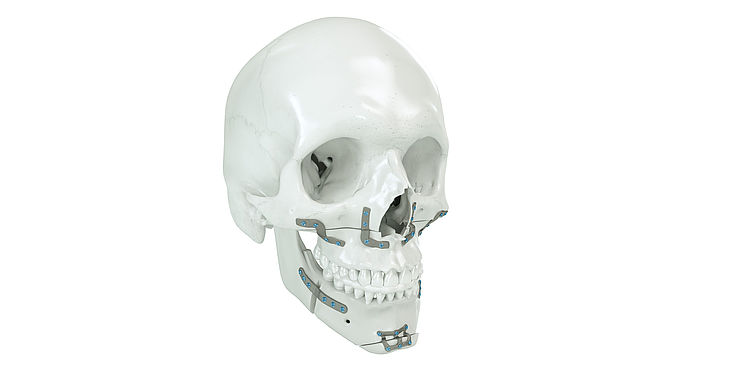 IPS Implants® Orthognathics