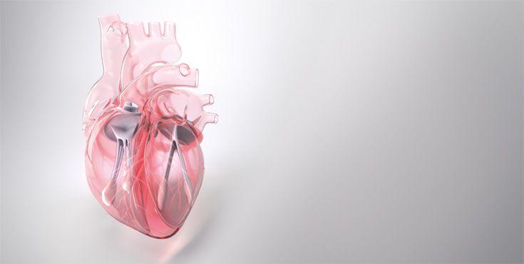Video cirugía cardiovascular