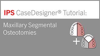 Maxillary Segmental Osteotomies | IPS CaseDesigner® Tutorial