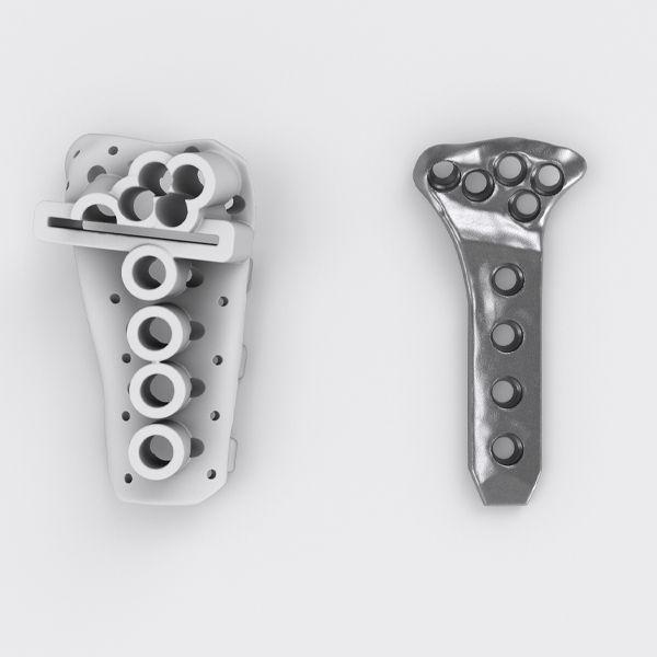 News | Wie funktioniert der Planungsprozess bei IPS Implants® Radius Reconstruction?