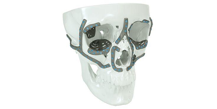 IPS Implants® Midface Orbita