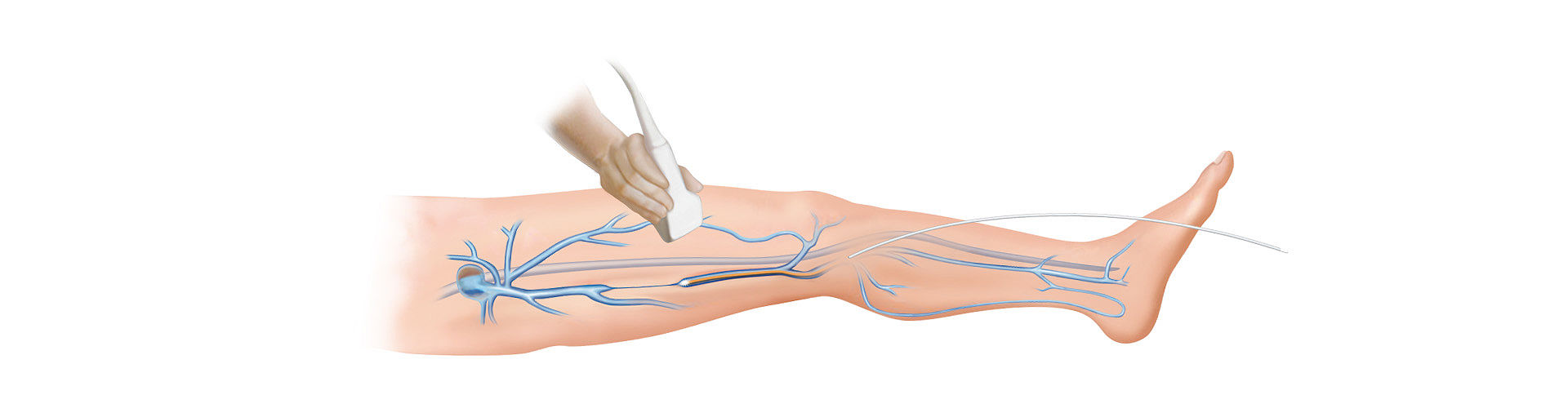 Surgical Laser Systems - diomax Venex 360 EVLO