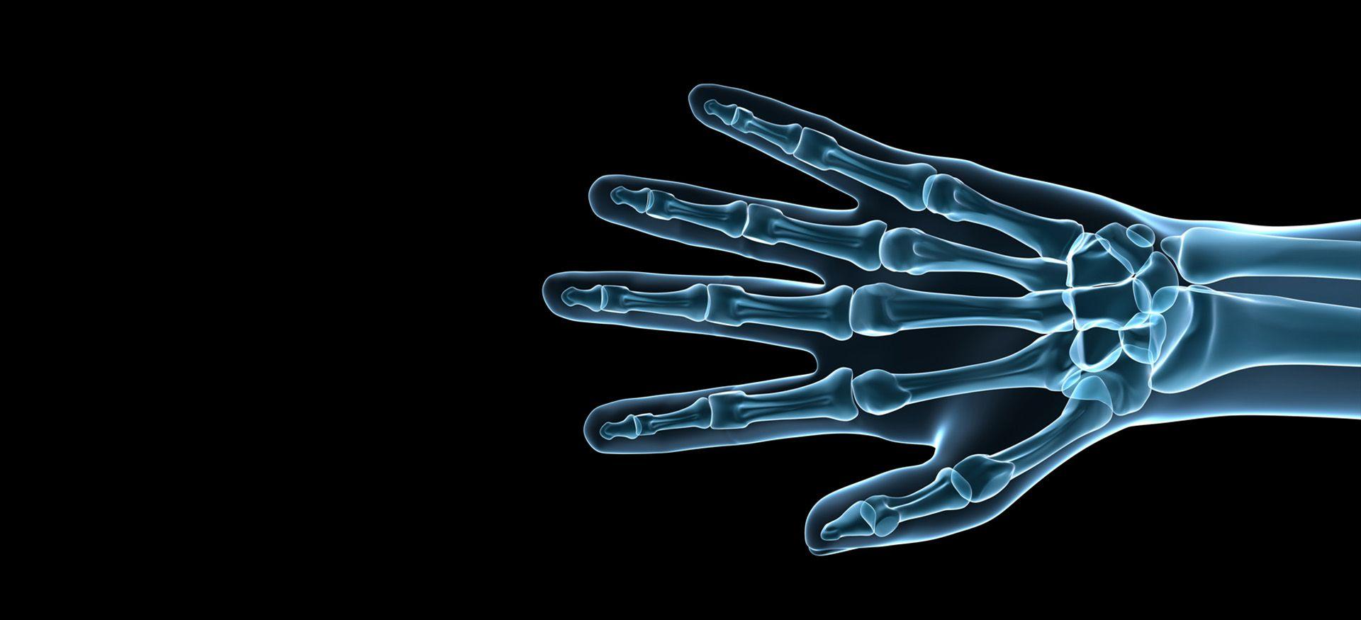 Cirugía de la mano