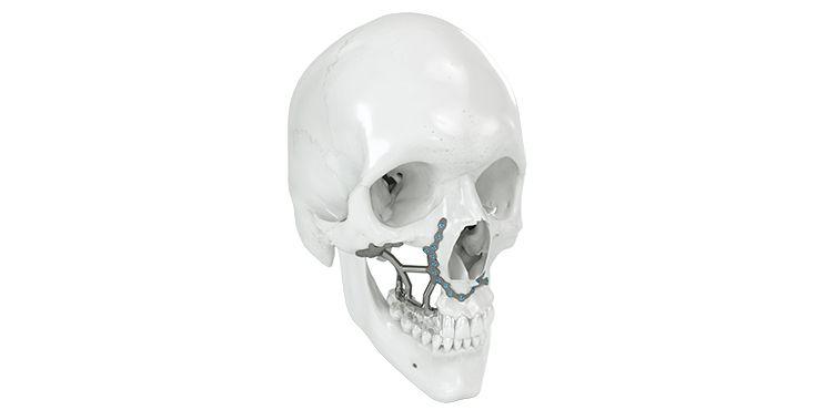 IPS Implants® Preprosthetic