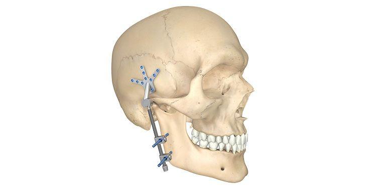CMF surgery - External fixateur Matthews Fixator Mandible
