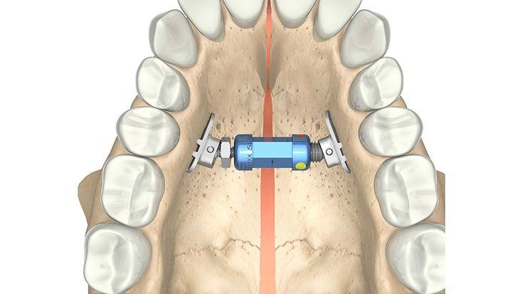 CMF surgery - Rapid Palatal Expander