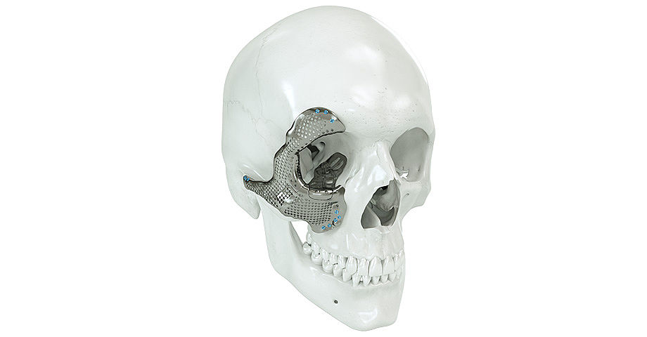Cirugía cráneo-maxilofacial - medio facial