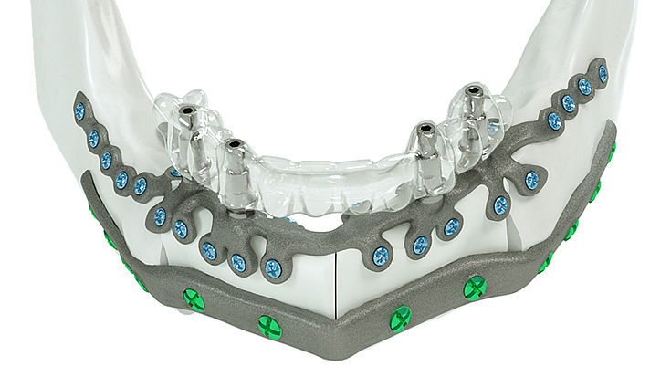 Treatment of the mandible with one IPS Implants® Preprosthetic