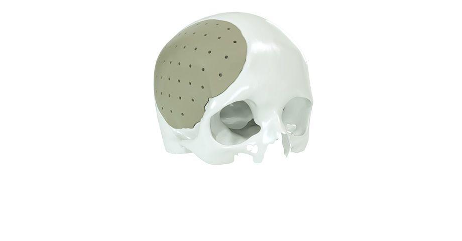 CMF surgery - Cranium