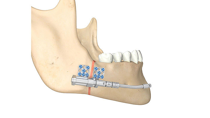 Mandibula Telescoping Distraktoren
