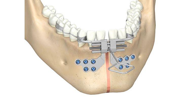 CMF surgery - Bologna Midline Distractor