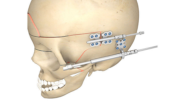 CMF surgery - Arnaud Cranio-Orbital Distractor