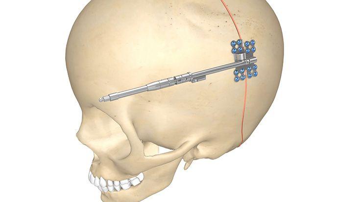 Distractores para la bóveda craneal posterior (Posterior Cranial Vault)